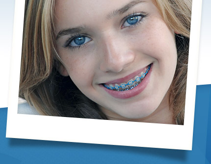 polaroid-types-of-braces-video